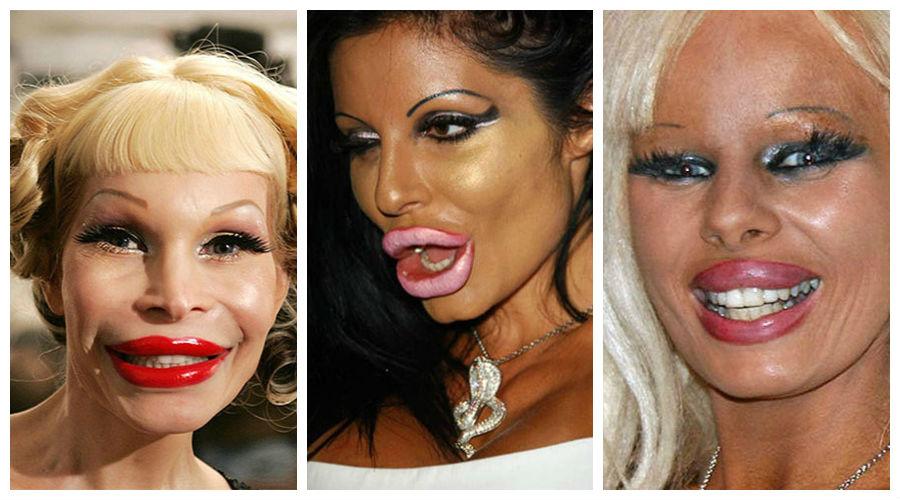 Cele mai nereuşite operaţii estetice (FOTO)