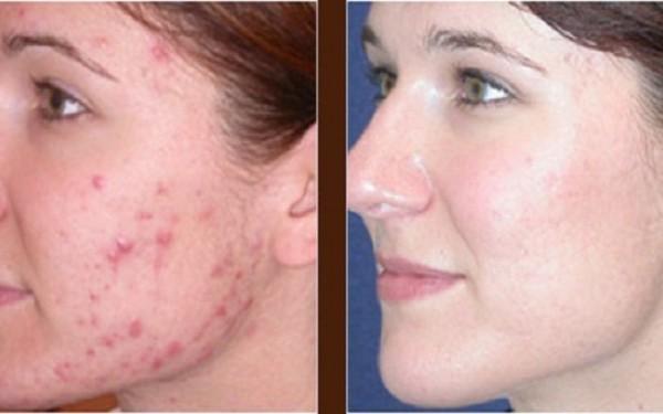 Dacă vrei să scapi de acnee, trebuie să încerci asta