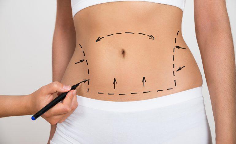 harta durerilor abdominale