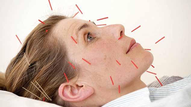 acupunctura chinezeasca