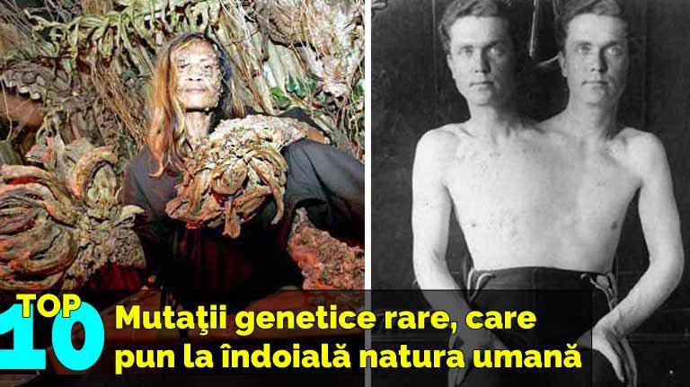 Top 10 mutaţii genetice rare, care pun la îndoială natura umană