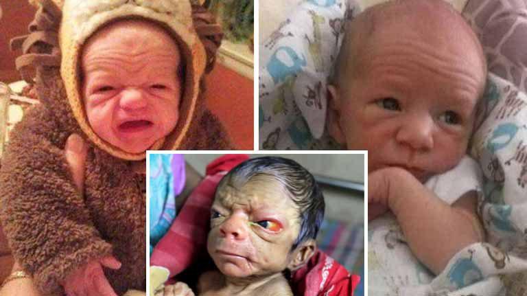 10 bebeluşi care au îmbătrânit înainte de timp | Copii născuţi bătrâni