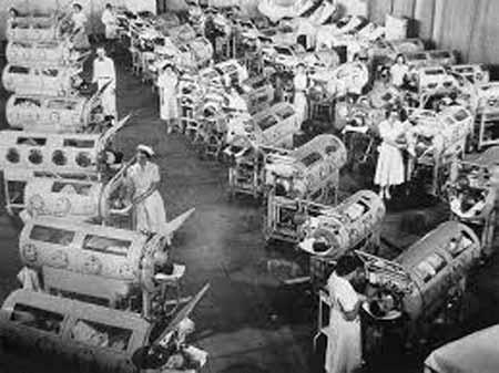 poliomielita virus