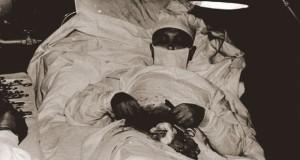 chirurgul care s-a operat singur