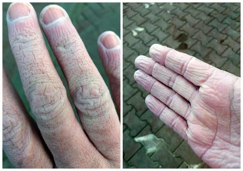 mâinile unui cadru medical